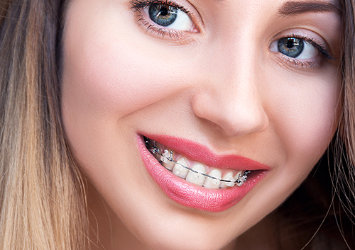 Choosing invisible braces over traditional braces